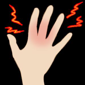 関節リウマチ_手の痺れ_06